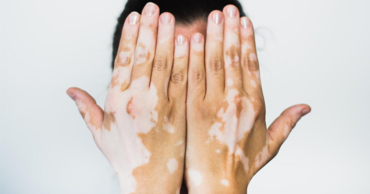 ما هو لون البهاق في بدايته وما هي عوامل خطر الإصابة به