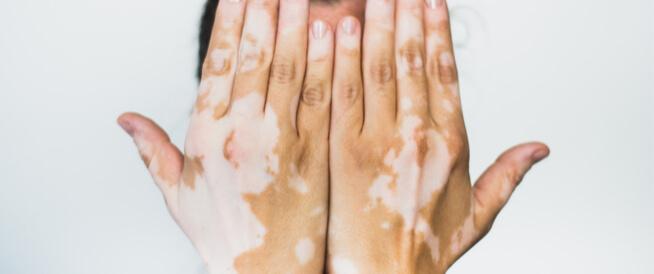 ما هو لون البهاق في بدايته وما هي عوامل خطر الإصابة به؟