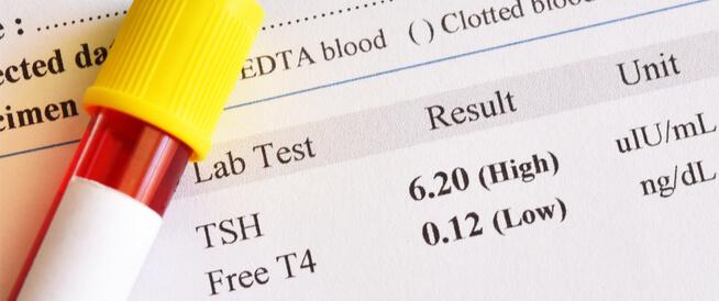 أعراض ارتفاع هرمون الغدة الدرقية TSH