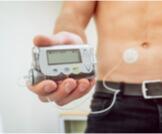 مضخة الأنسولين وأهم المعلومات حولها
