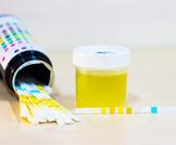 أعراض ارتفاع البروتين في البول للحامل