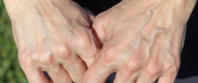 أسباب ظهور عروق اليد الخضراء وطرق علاجها