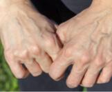 أسباب وعلاج ظهور عروق اليد الخضراء