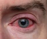 أسباب احمرار العين المتكرر