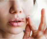 تعرف على أعراض الهربس بالتفصيل ومراحله