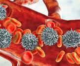 تحليل سرطان الدم وتشخيصه