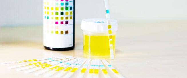 أعراض وأسباب ارتفاع البروتين في البول