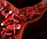 ما هي أسباب فقر الدم المتكرر؟