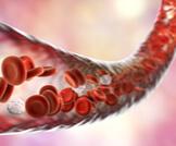 أسباب وأعراض ارتفاع الصفائح الدموية