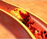أسباب وأعراض انسداد شرايين القلب