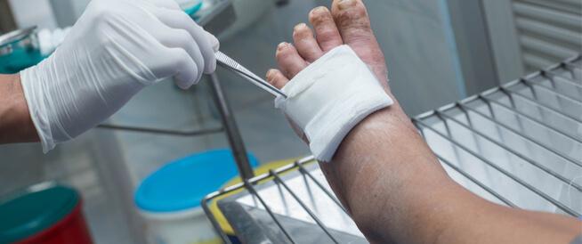 أعراض القدم السكري ومضاعفاتها