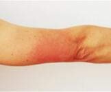 أعراض الإيدز على الجلد