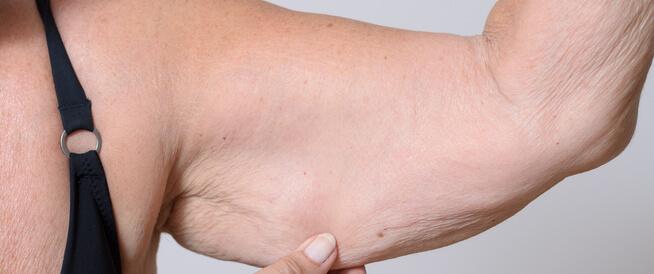 أحدث أساليب علاج ترهلات الجسم