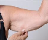 أساليب علاج ترهلات الجسم