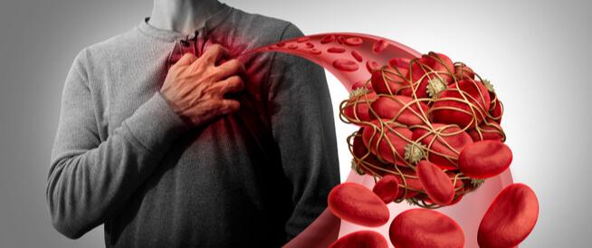 علاج تخثر الدم
