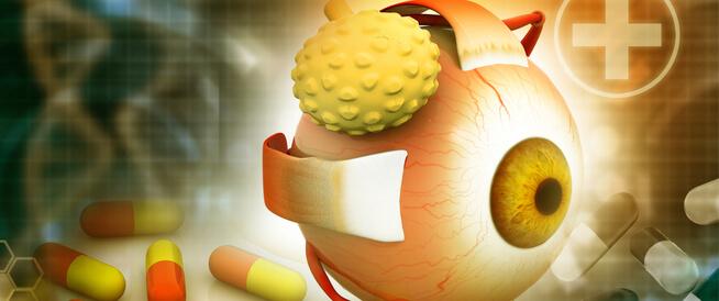 أعراض سرطان العين وطرق التشخيص