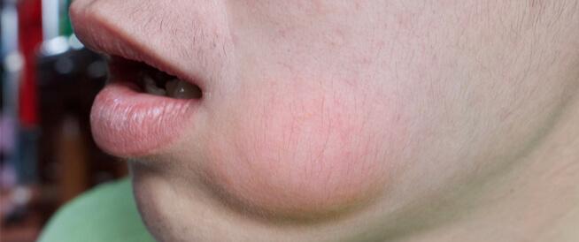 أسباب انتفاخ الوجه عند الأطفال والكبار