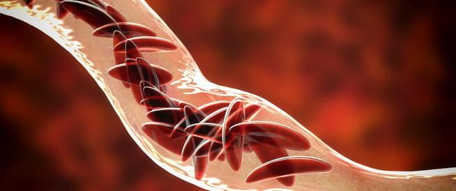 أنواع فقر الدم: كثيرة ومختلفة
