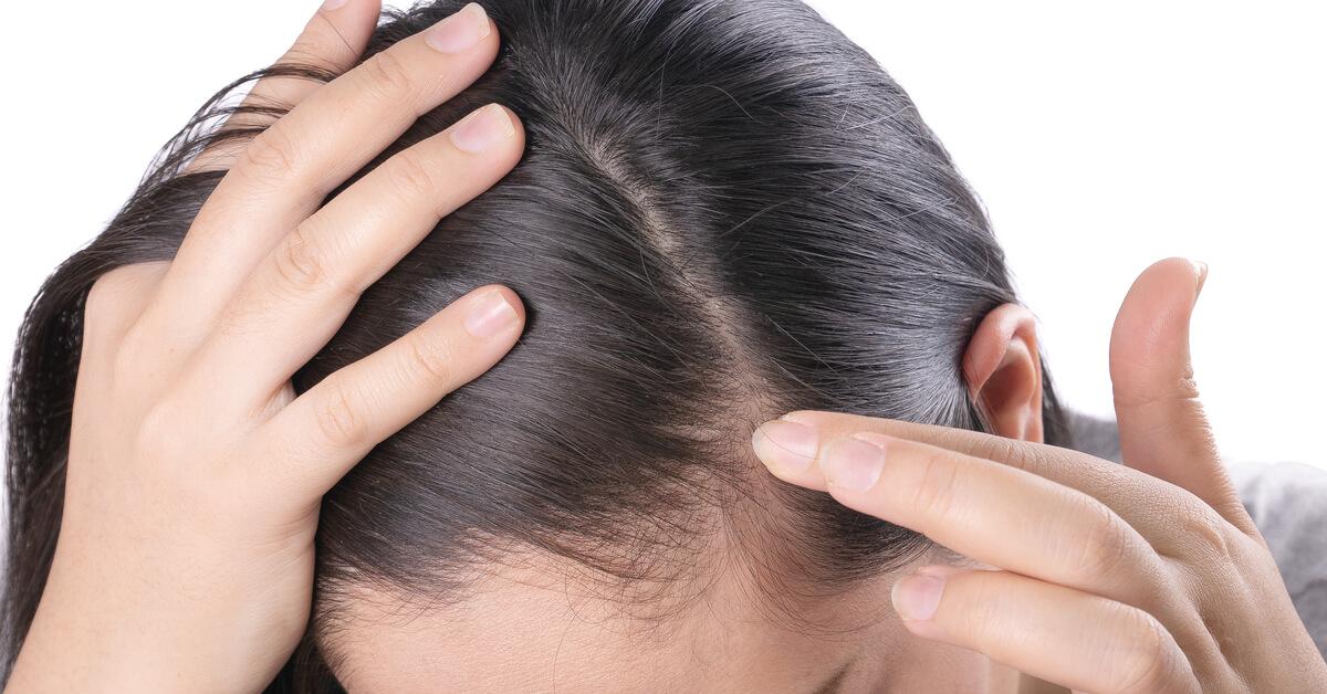 علاج بطء نمو الشعر يبدأ من معرفة الأسباب ويب طب