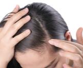 علاج بطء نمو الشعر