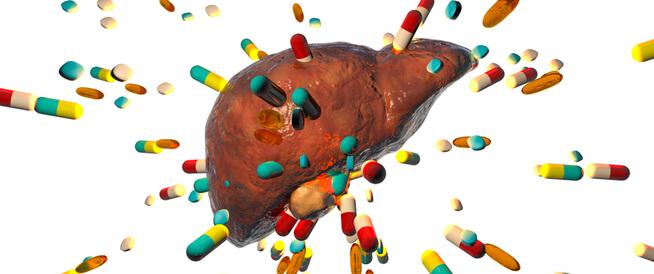 تسمم الكبد: أسباب وأعراض وعلاج