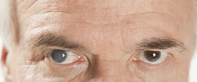 إعتام عدسة العين: الأسباب والأعراض والعلاج