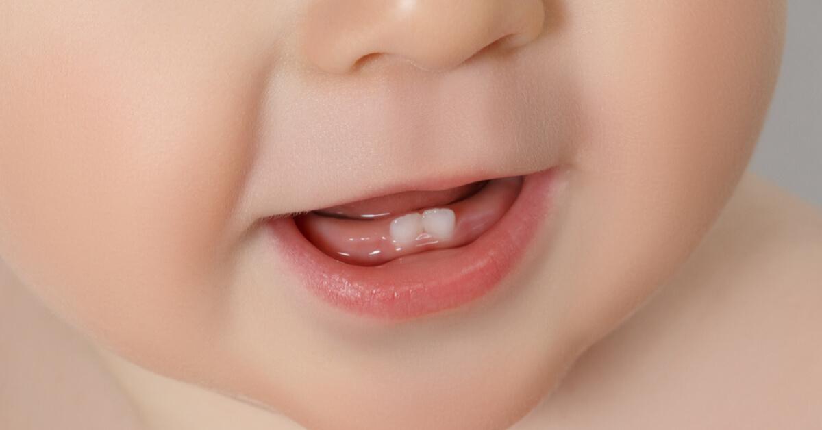 متى يبدأ ظهور الأسنان عند الأطفال ويب طب