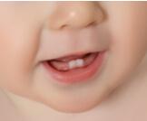 متى يبدأ ظهور الأسنان عند الأطفال؟