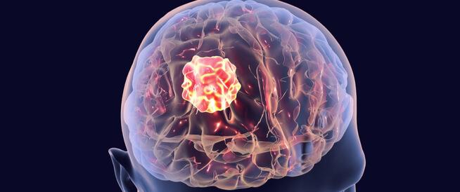 أعراض الورم في المخ