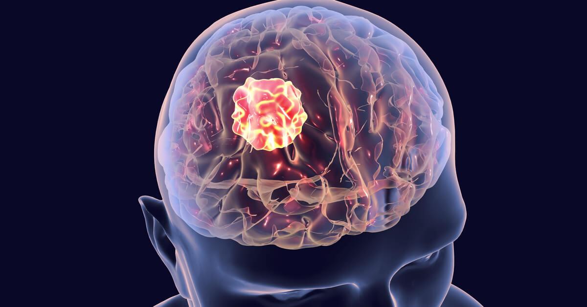أعراض الورم في المخ ويب طب