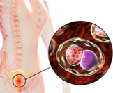 علاج جرثومة الرحم بالأعشاب