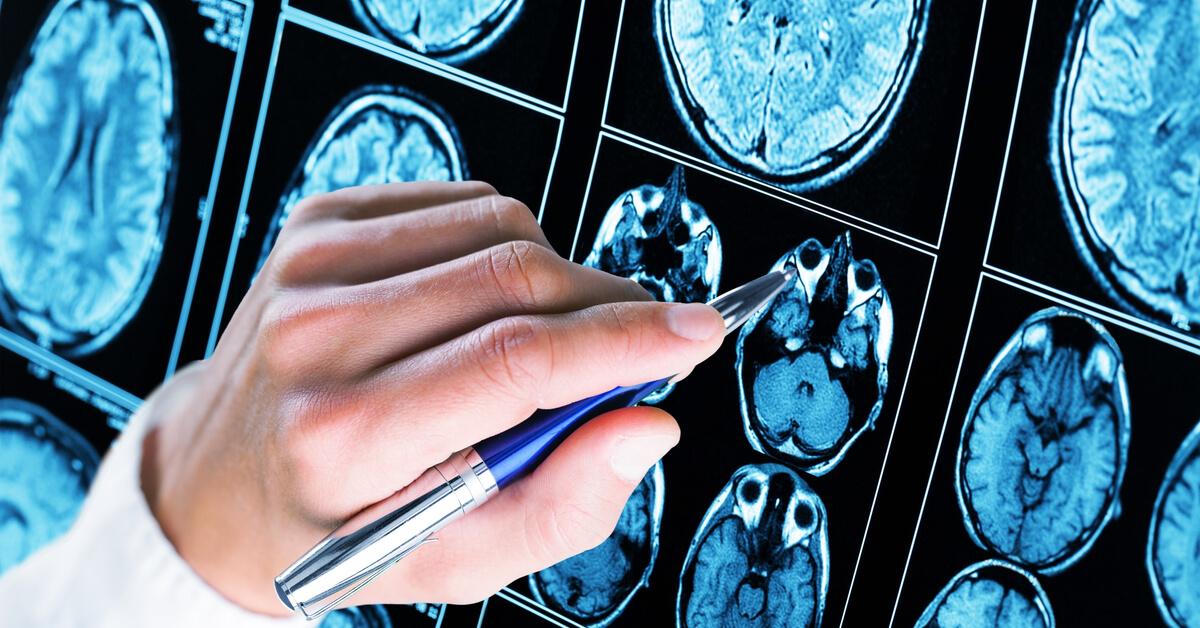 زيادة كهرباء المخ ويب طب