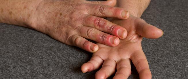 مرض رينود: ما هو؟