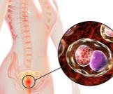 جرثومة الرحم
