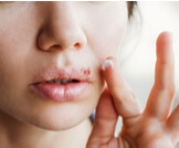 علاج الهربس الفموي