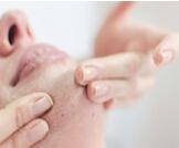 إزالة الجلد الميت: كيف تفعلها؟