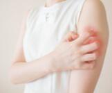 أبرز أنواع الفطريات الجلدية الشائعة
