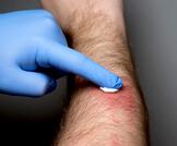 أضرار الكورتيزون على الجلد