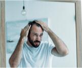 كيفية تقوية بصيلات الشعر للرجال