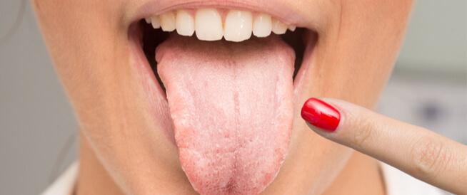 حساسية اللسان والتهابه