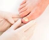 علاج فطريات الأظافر بالخل: هل هو ممكن؟