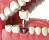 عيوب زراعة الأسنان