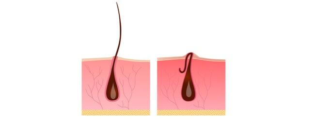 كيفية إزالة الشعر تحت الجلد