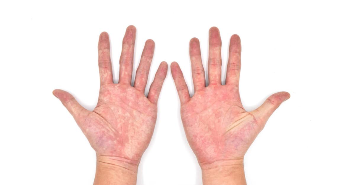 ما هي أسباب تغير لون كف اليد ويب طب