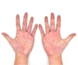 ما هي أسباب تغير لون كف اليد