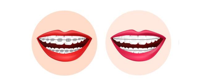 مزايا وعيوب تقويم الأسنان