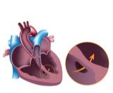 أنواع ثقب القلب عند الأطفال