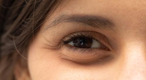 ما هي أسباب تورم العين عند الاستيقاظ ويب طب