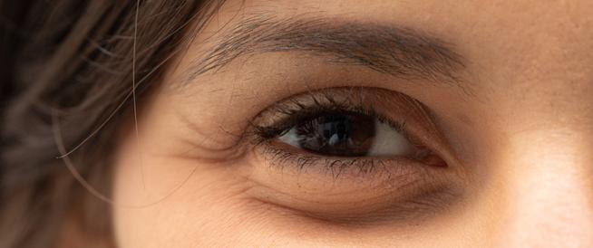 ما هي أسباب تورم العين عند الاستيقاظ