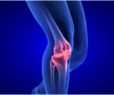 درجات قطع غضروف الركبة وعلاجها